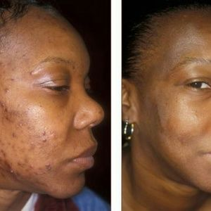 Kojic acid acne removing soap that WORKS